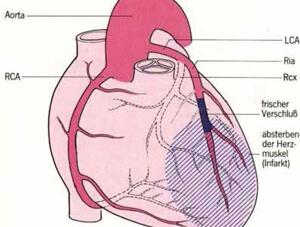 Herz mit Koronarien und skizziertem grossen Infarktareal bei proximalem Verschluss